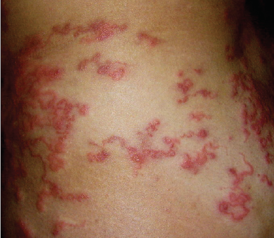 Skin Bugs and Travel Bugs: An Update for Clinicians - Practical