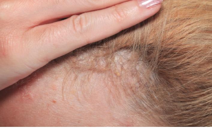 scalp psoriasis treatment reddit)