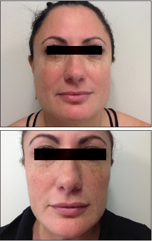 Botox in the Masseter - Practical Dermatology