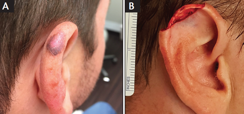 A Case of Melanoma on the External Ear of a Young Man