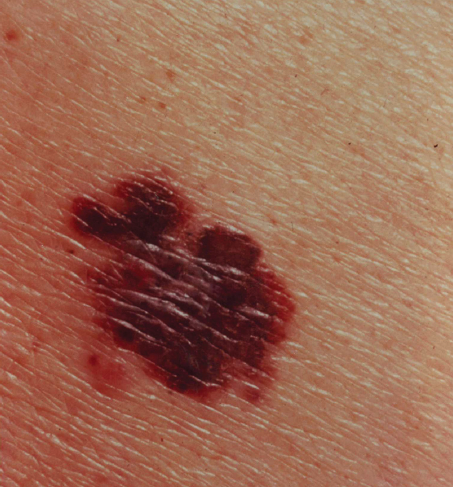 Thin Melanomas: When is SLN Biopsy Indicated? - Practical